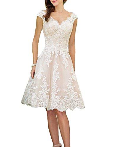 YASIOU Hochzeitskleid Elegant Damen Standesamt Kurz Tüll Spitze Tiefer Rücken A Linie Champagner Brautkleid