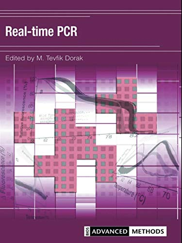 Real-time PCR (Advanced Methods) (English Edition)